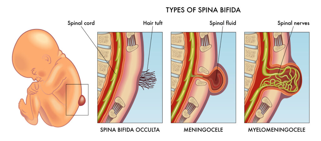 Spina bifida illustration