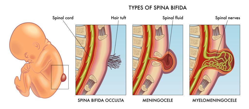 spina bifida pada bayi