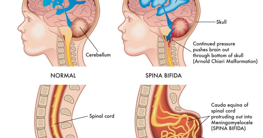 Spina Bifida Medical Illustration