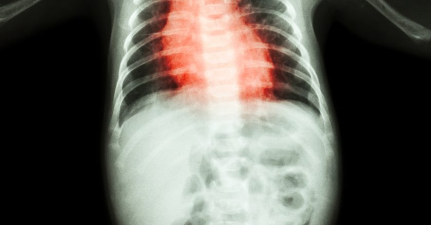 Congenital Heart Disease , Rheumatic Heart Disease ( X-ray whole body of child and red color on heart area )