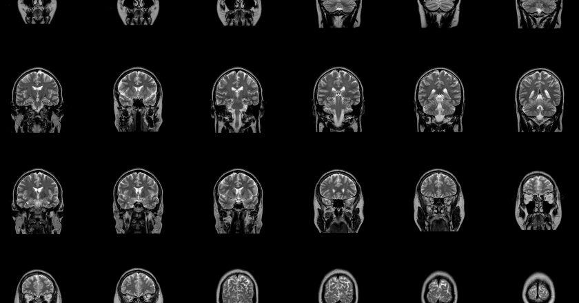Magnetic resonance imaging MRI of brain stem