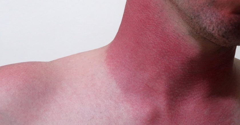 Severe Sunburn on the Neck of a Causasian Male |