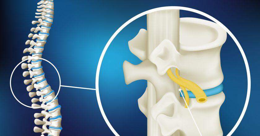 Diagram showing spinal cord injury |