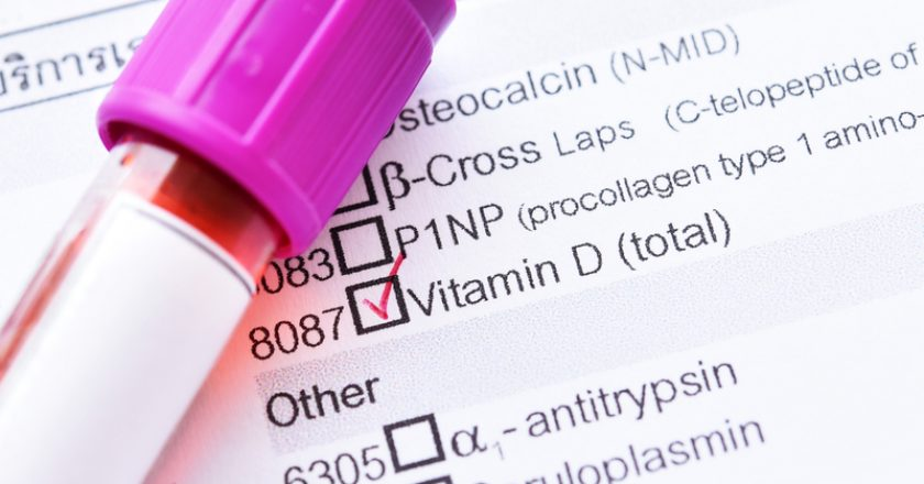 Vitamin D test | © Jarun011 | Dreamstime Stock Photos