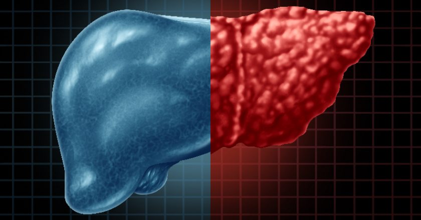 Fatty Liver Disease | © Skypixel | Dreamstime Stock Photos