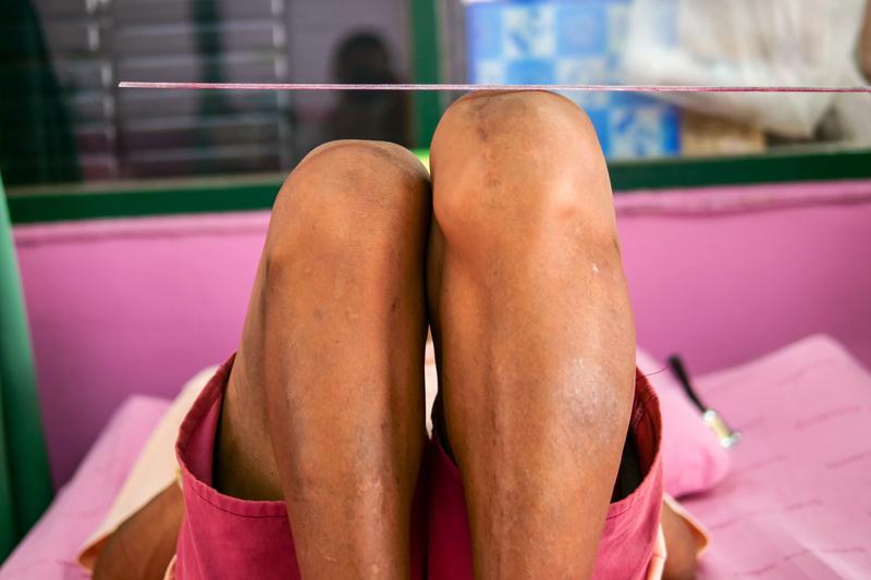 Leg Length Discrepancy LLD | © Angkhan | Dreamstime Stock Photos