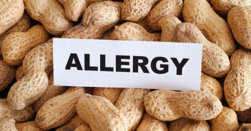 Peanut allergy | © Professor25 | Dreamstime Stock Photos