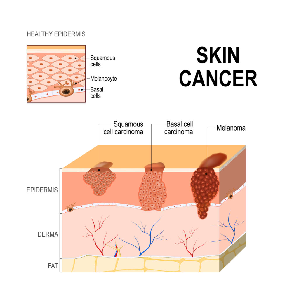Skin cancer. Squamous cell carcinoma, basal-cell cancer and Melanoma.