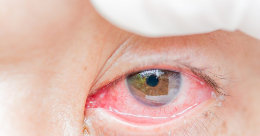 Conjunctivitis and inflammation in the eyes.