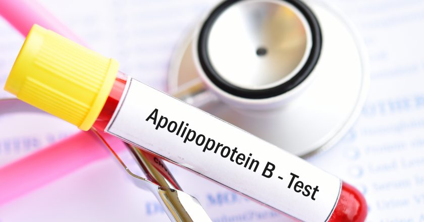 Apolipoprotein B test