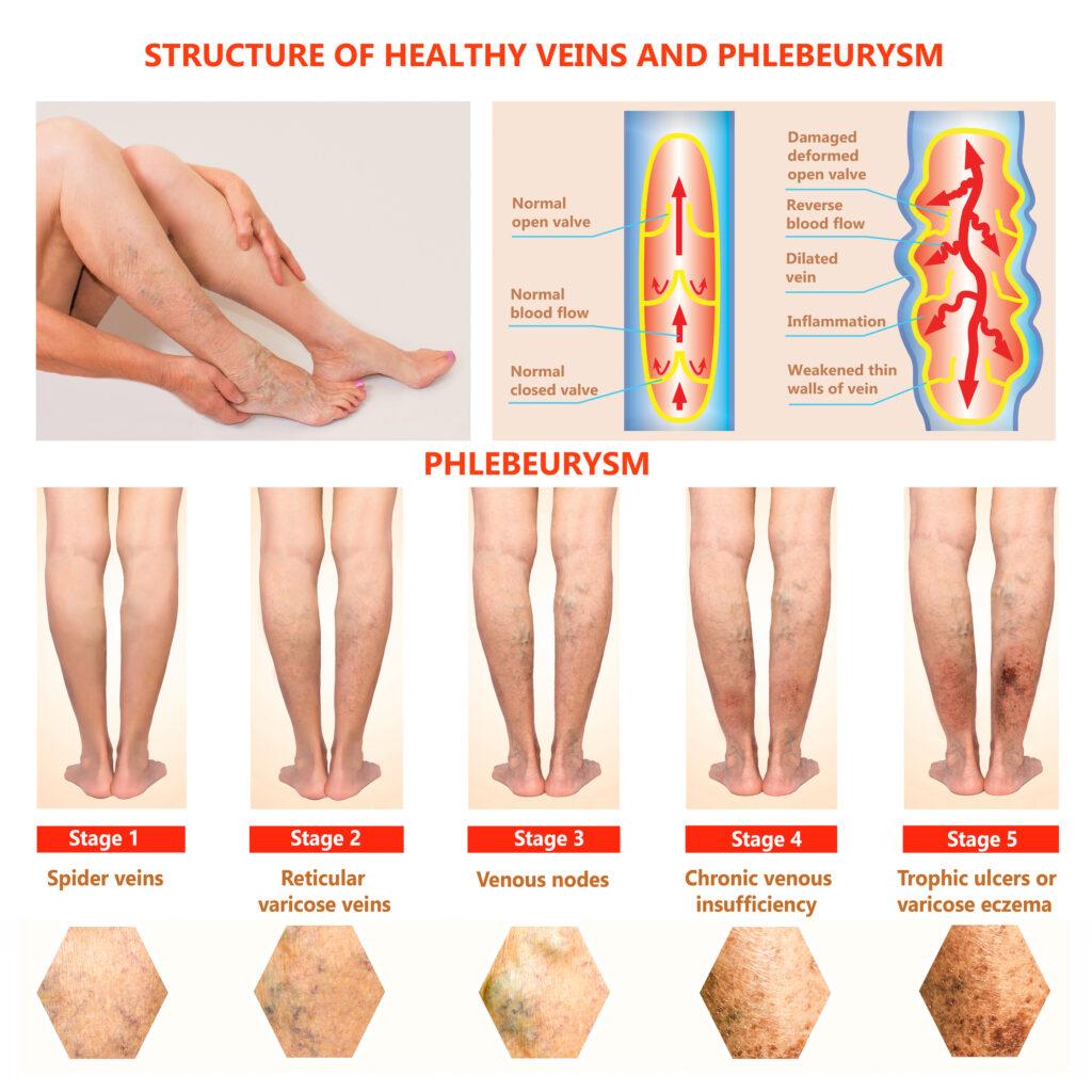 Thrombophlebitis. Deep Vein Thrombosis. Varicose veins