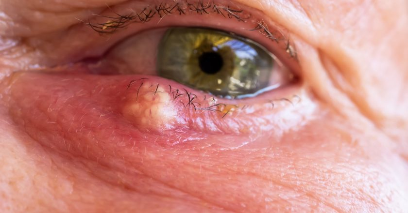 An external stye on the lower eyelid
