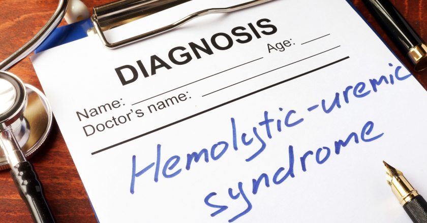 Diagnosis Hemolytic-uremic syndrome HUS.