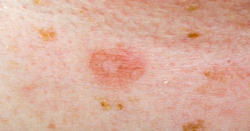 Candida infection on human skin