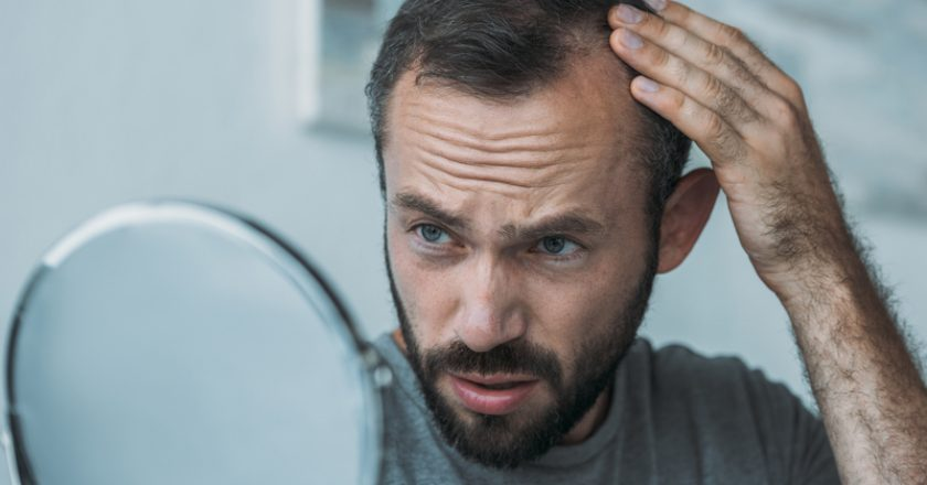 upset middle aged man with alopecia looking at mirror hair loss | © Lightfieldstudiosprod | Dreamstime Stock Photos