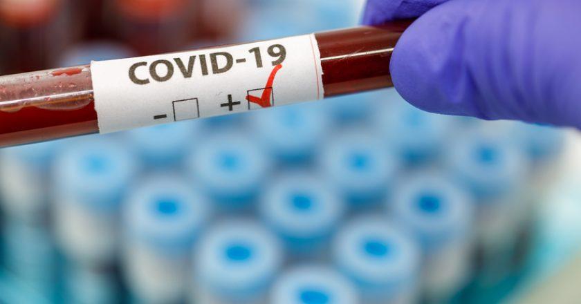 Gloved Hand Holding Positive COVID-19 Test  | © Ovidiudugulan | Dreamstime Stock Photos