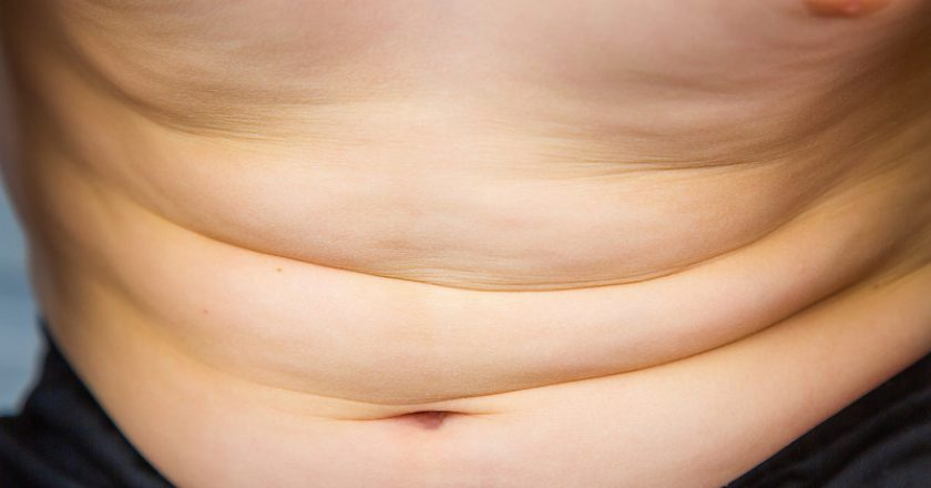 Child`s belly showing overweight and early signs of obesity | © Pixinoo | Dreamstime Stock Photos