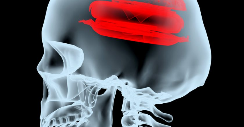 X-ray of a head with the burger instead of the brain   © FabioBerti   Dreamstime Stock Photos