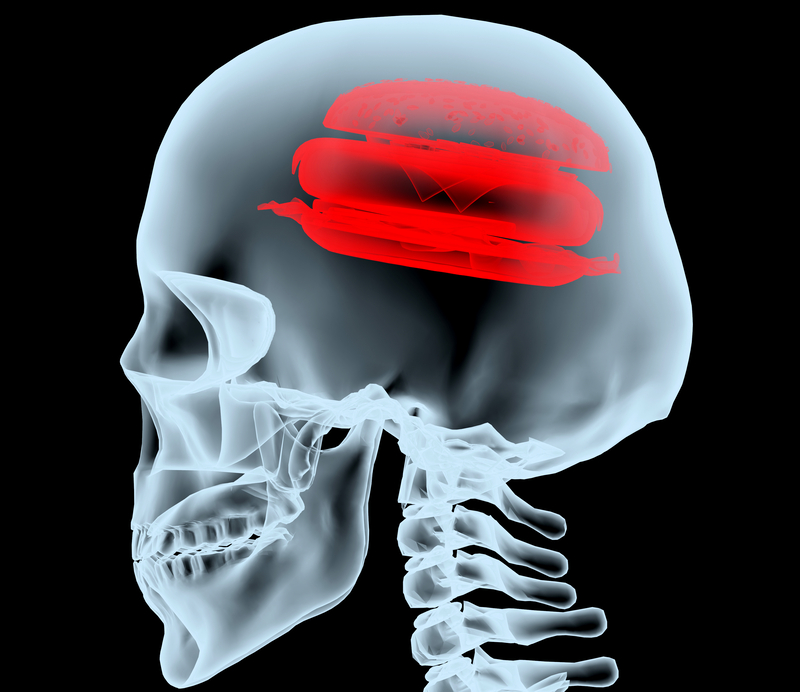 X-ray of a head with the burger instead of the brain | © FabioBerti | Dreamstime Stock Photos